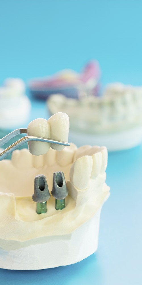 Banner-Implantes-Dentales